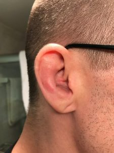 Drained cauliflower ear