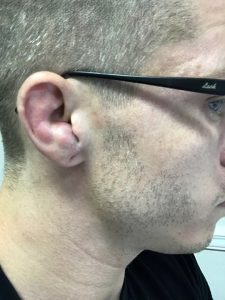 Clotted cauliflower ear